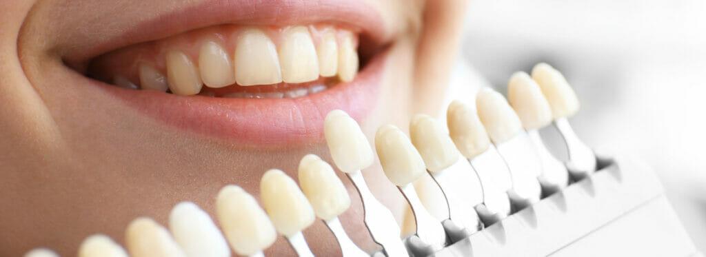 Dental Fillings Kitchener Dentist