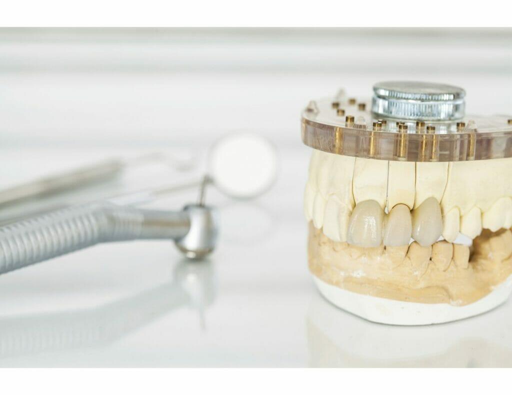 dental bridge near me