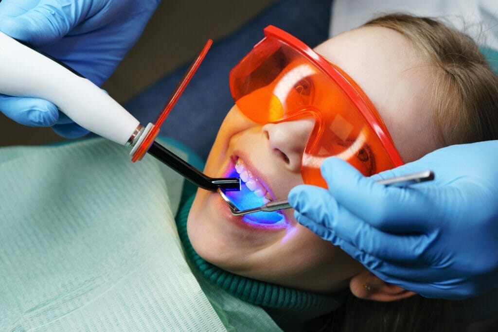 dental fillings kitchener