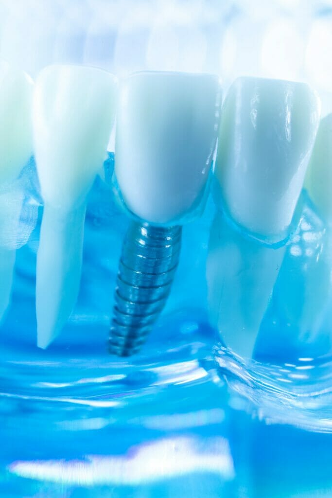 dental implants kitchener