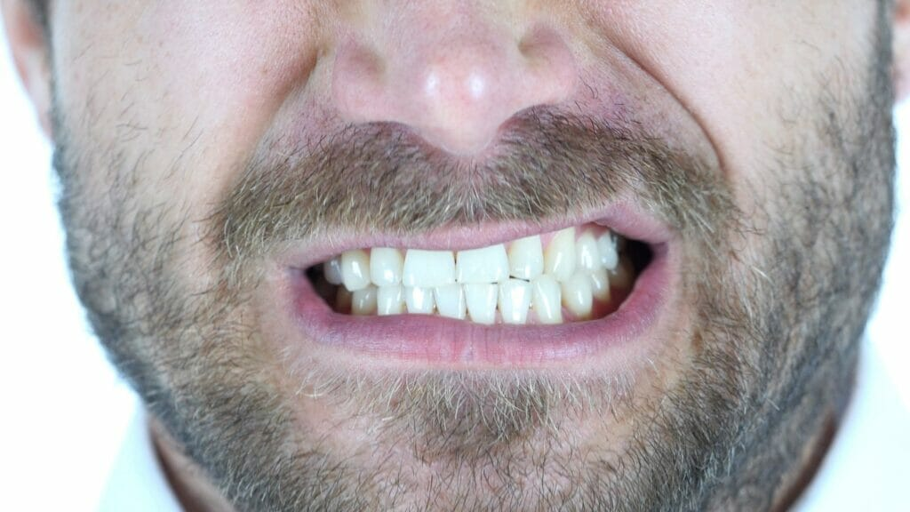 gum recession from grinding teeth