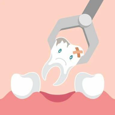 Wisdom Teeth Removal in Kitchener