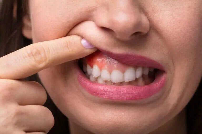 Swollen-Gum