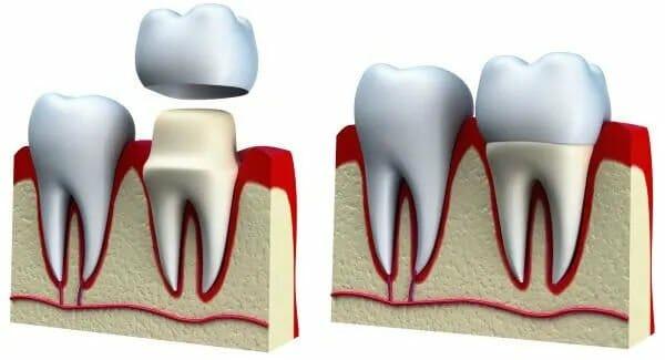 dental crown 1