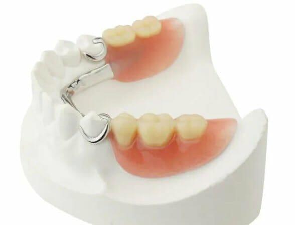 Partial dentures in Kitchener