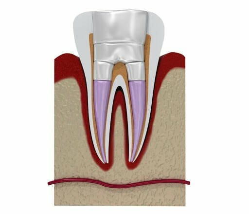 root canal treatment kitchener